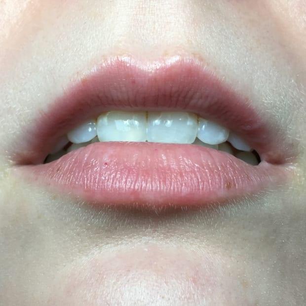 We Put 4 Noninvasive Lip Filler Alternatives to The Test