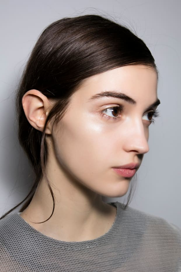 How to Get Rid of Dark Under Eye Circles With Filler