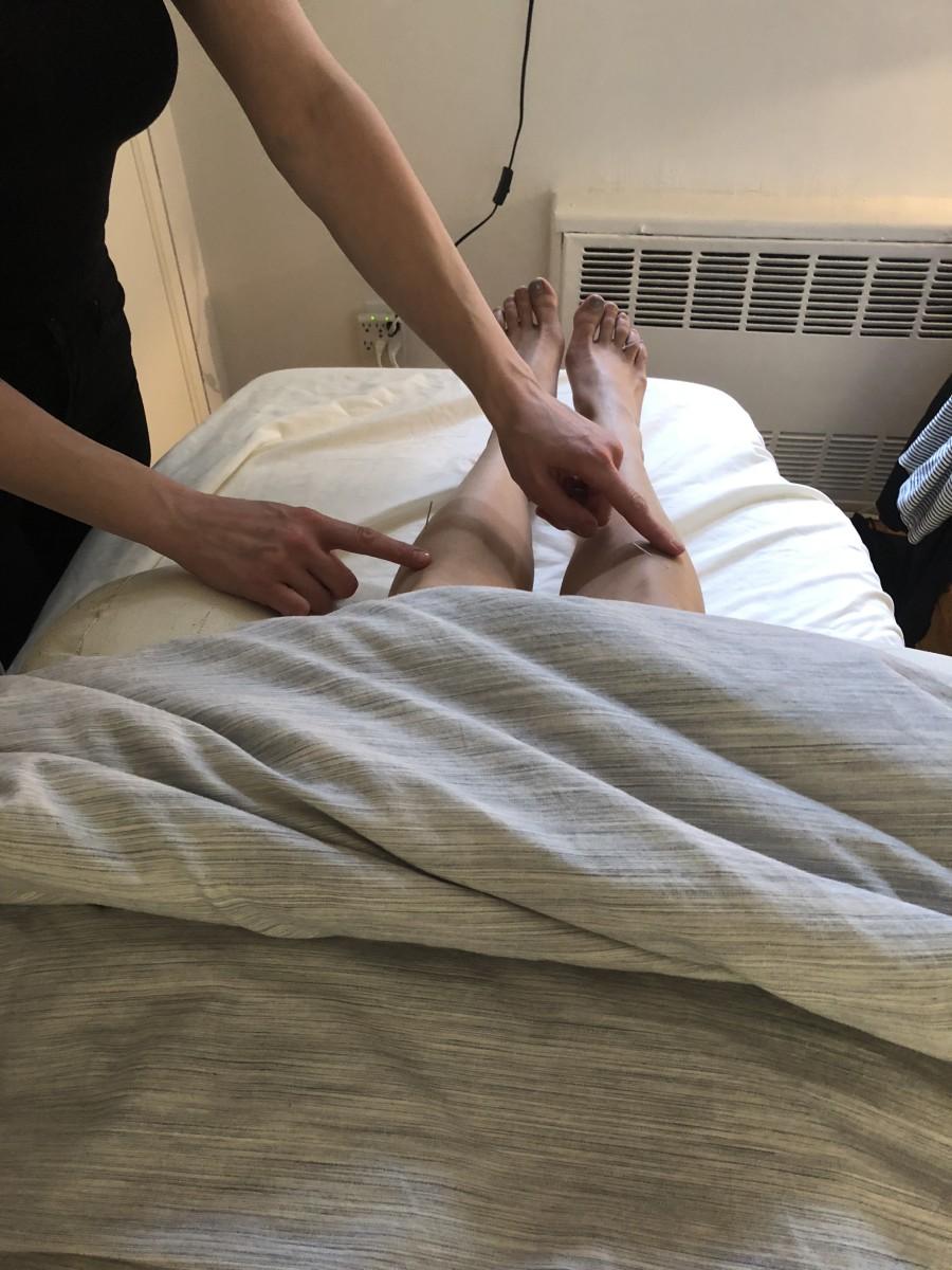 Acupuncture Facial Legs